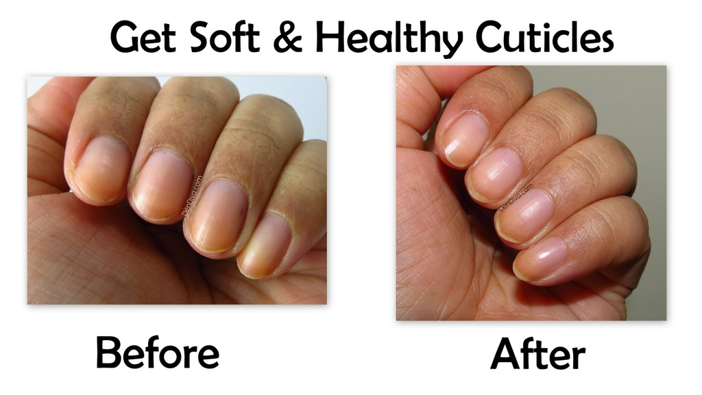 Nail Care Guide : How to Get Soft and Healthy Cuticles Naturally ...